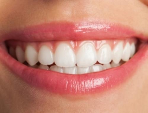 Carillas dentales, mejora tu sonrisa