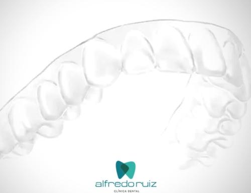 ¿Has pensado alguna vez en las ventajas de la #ortodonciainvisible?